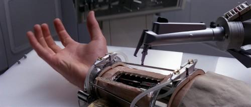 Prothèses mécaniques